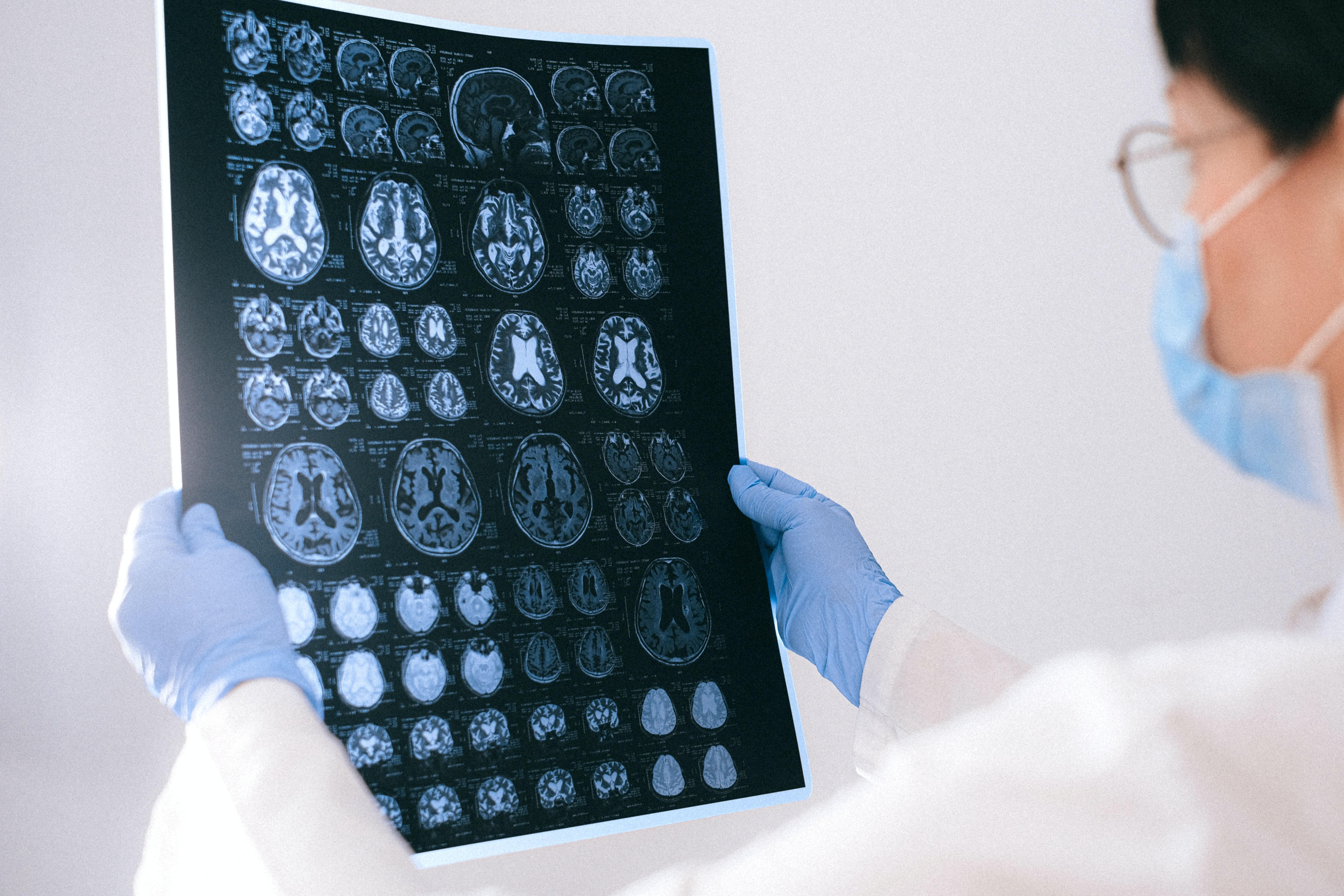 Brain Scan after journaling